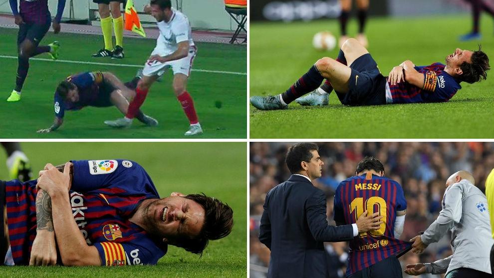 Messi no estará para el Clásico ante el Real Madrid por la fractura en el radio de su brazo derecho