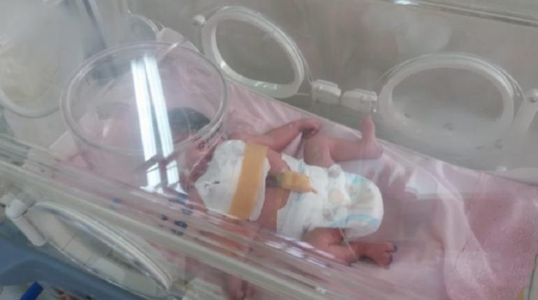 La bebé María Gloria Almeida, es sometida a un proceso quirúrgico para acomodar su corazón que esta fuera de la cavidad tóraxica y serán cubiertos por el Gobierno nacional