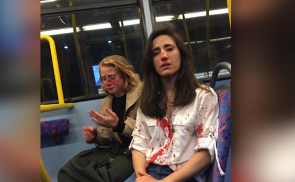 Azafata uruguaya y su novia recibieron tremenda golpiza en un autobús les obligaron a besarse