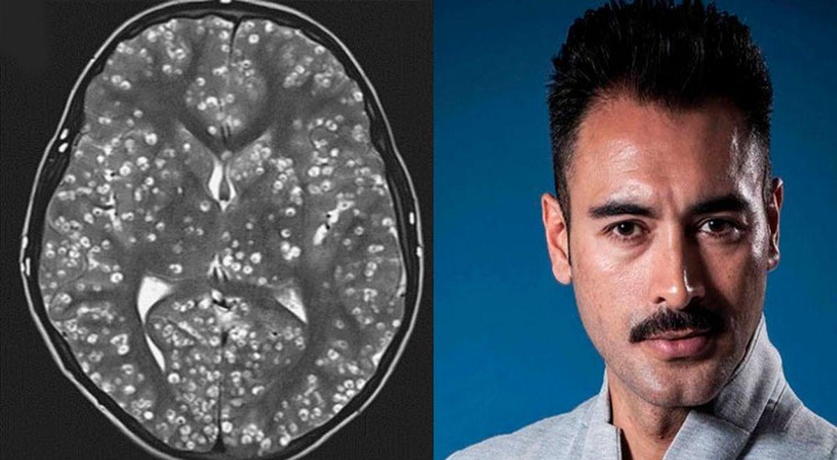 La cisticercosis enfermedad que habría matado al actor mexicano Sebastián Ferrat